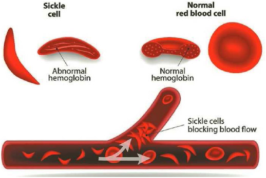 Sickle red blood cells (left) and normal red blood cells (right).