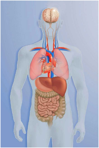 A total visceral inversion (situs inversus) in which the visceral organs are reversed—the heart is on the right, the liver is on the left.