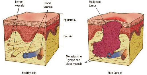 Healthy skin cells protect the body (left), but cancer cells grow and divide uncontrollably (right), crowding out the healthy cells nearby. Melanoma is particularly dangerous because it can spread throughout the body.