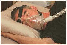 Sleep apnea patient using a continuous positive airway pressure (CPAP) machine. CPAP is a treatment that uses mild air pressure to keep the airway open. CPAP typically is used by people who have sleep apnea or other breathing problems.