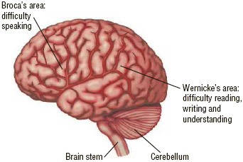Location of Broca's area and Wernicke's area of the brain.