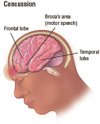 Illustration of the head and brain, depicting the areas of the brain most vulnerable in a concussion. The frontal lobe regulates reasoning, planning, parts of speech and movement, emotions, and problem-solving.
