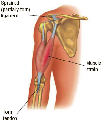 Strains and sprains are injuries to the muscles, tendons, and ligaments.