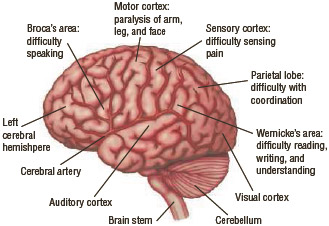 Strokes can affect many different parts of the brain.