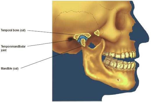 Side view of a temporomandibular joint.