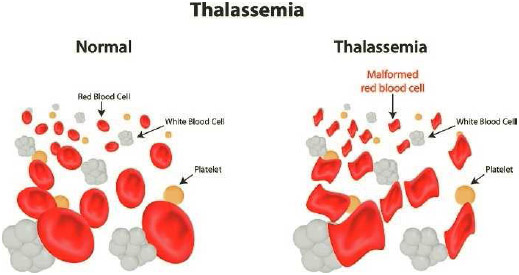 Distorted red blood cells in the inherited blood disorder thalassemia. Affected red blood cells are variously shaped and fragile; they rapidly break up as they move through the body.