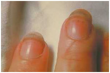 The splinter hemorrhages under the fingernails of a patient with the parasitic disease trichinosis.