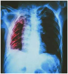X-ray of lung (right) infected with Mycobacterium tuberculosis, the bacterium that causes tuberculosis. This disease has infected humans for thousands of years.