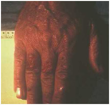 This patient's tularemia manifested as lesions on the hand. Tularemia is caused by the bacterium Francisella tularensis that is found in animals, especially rodents, rabbits, hares, and muskrats, and can be used as a bioterorrism agent.