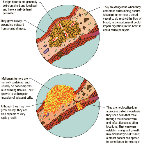 A comparison of the characteristics of a benign tumor (top) and a malignant tumor (bottom).