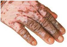 The hand of a person with vitiligo.