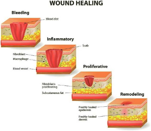 Wound healing takes place in four distinct phases from stopping the bleeding (Bleeding) to the immune system attack on any contaminating debris or germs (Inflammatory) to producing new skin and tissue cells