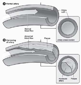 Figure 16.1. Atherosclerosis