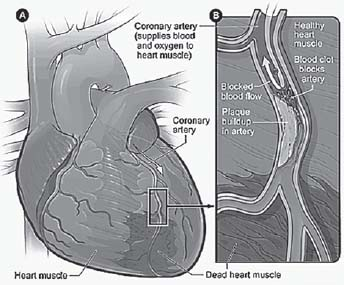 Figure 16.2. Heart with Muscle Damage and a Blocked Artery