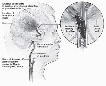 Figure 16.3. Ischemic Stroke