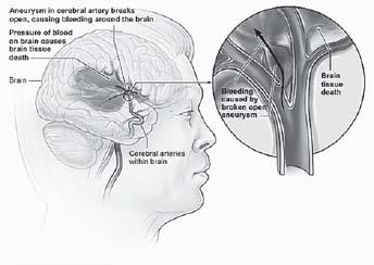 Figure 16.4. Hemorrhagic Stroke