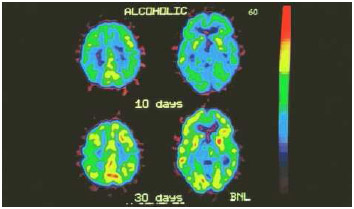 Colored positron emission tomography scans of a heavy drinker's brain during withdrawal from alcohol; the top shows brain activity after 10 days (yellow areas), and the bottom shows brain activity after 30 days without alcohol.