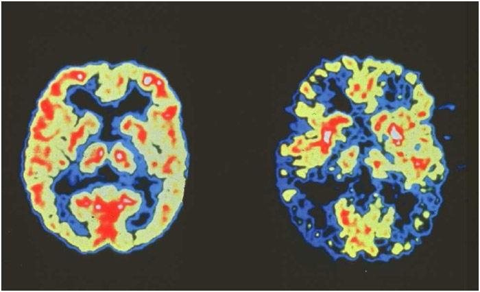 Colored positron emission tomography scans comparing a healthy brain (left) to a brain affected by Alzheimer's disease (yellow areas indicate brain activity).