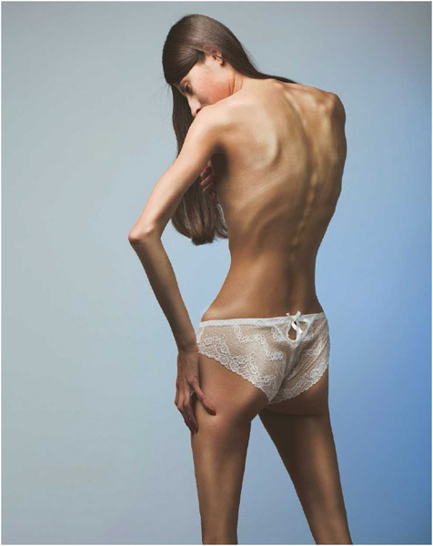 A woman suffering from anorexia nervosa.