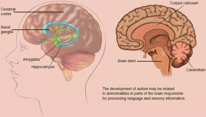 Major brain stru ctu re s implicated in autism
