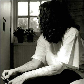 Woman with scars from self-mutilation.