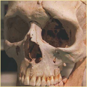 Skull of Phineas Gage on display at the Warren Anatomical Museum at the Countway Library of Medicine at the Harvard.