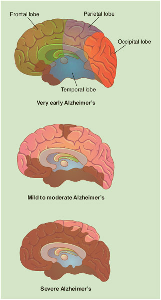 The progression of the neurofibrillary tangles that spread throughout the brain is shown in brown. Plaques also spread throughout the brain until the brain tissue is severely damaged and shrunken (final stage of Alzheimer's disease).