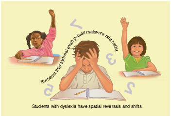 Students with dyslexia have spatial reversals and shifts.