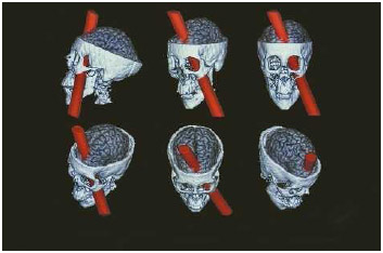 Phineas Gage brain reconstruction.