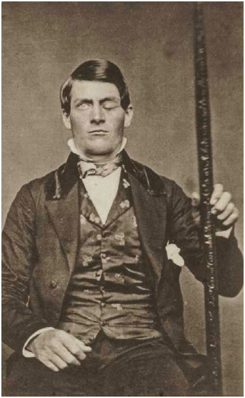 Phineas Gage holding a tamping iron like the one that passed through his head.