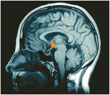 A magnetic resonance imaging (MRI) scan of the human brain; the hypothalamus is highlighted in orange.