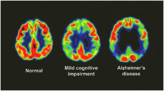 Positron emission tomography (PET) scans showing a normal brain, an impaired brain, and a brain affected by Alzheimer's disease.