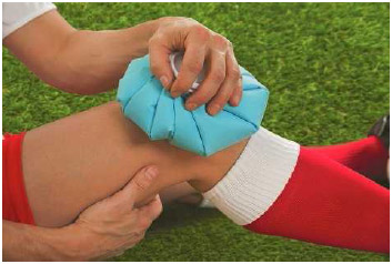 An athlete uses a cold compress on his knee after an injury. Ice, as part of the R.I.C.E. treatment (rest, ice, compression, and elevation) recommended by doctors for minor sprains and injuries.