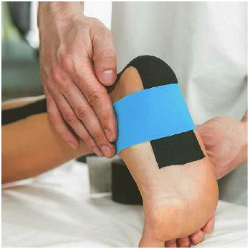 A physical therapist uses kinesiology tape on a patient's foot to facilitate quick healing and prevent further injury. Kinesiology tape provides support and stability to muscles and joints without restricting the body's range