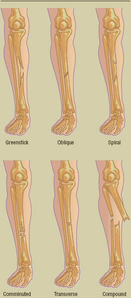 Examples of common types of categorized bone fractures include: greenstick (a partial break in a bone still forming), oblique (the fracture occurs diagonally to the axis of the bone), spiral (breakage in a curving shape),