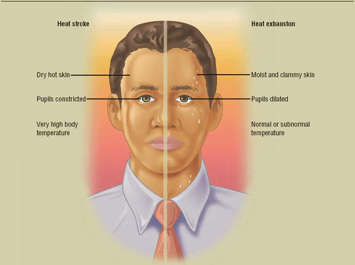 Heatstroke (left) and heat exhaustion (right) manifest in very different ways.