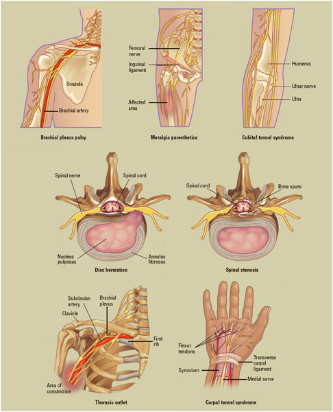 Several common examples of nerve entrapment affecting various parts of the body.