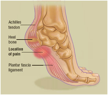 The most common complaint voiced by people suffering from plantar fasciitis is aching, burning, or stabbing pain near the bottom of the heel, which is usually worse in the morning and may improve throughout the day.