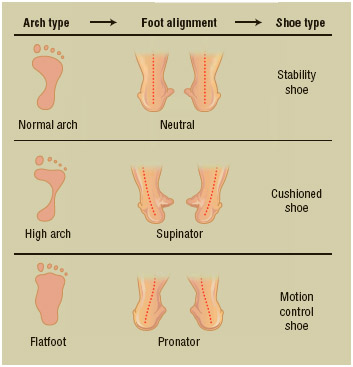 People with flat feet or high arches are at increased risk for developing plantar fasciitis. Wearing the right type of shoe, correctly fitted and with proper support for the heel, arch, and ball of the foot, can help to reduce the threat.