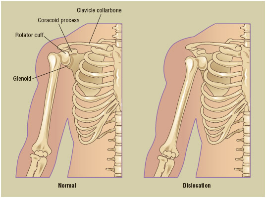 Shoulder dislocation is one of three common ways that the shoulder's full range of motion can be compromised.
