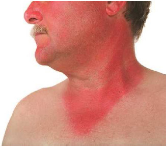 Exposure to the sun, especially exposure that leads to sunburn, can trigger various skin diseases, including skin cancer.