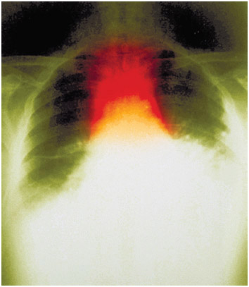A chest x-ray of anthrax inhalation. Respiratory inhalation of anthrax is also a potential agent in biological warfare as the spores of the bacterium can be freeze-dried and loaded in munitions or disseminated as an aerosol.