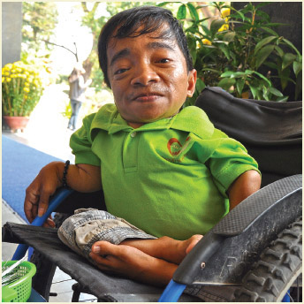 A young man affected by Agent Orange, Ho Chi Minh, Vietnam-February 12, 2012.