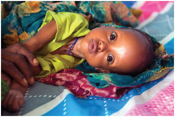 Eight-month-old Aymad recovers at a stabilization center for malnourished children ata health clinic in a drought-affected area, on May 18, 2017 in the Somali Region, Ethiopia.