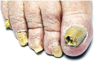 Fungus infection on a man's toenails.