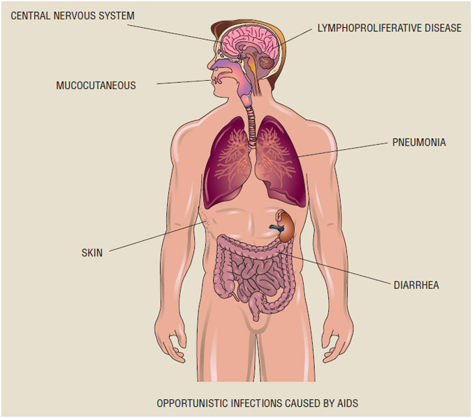 OPPORTUNISTIC INFECTIONS CAUSED BY AIDS