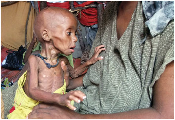 Severely malnourished child from southern Somalia is being held in a makeshift shelter in a refugee camp in Mogadishu, Somalia, Tuesday, Sept. 20, 2011.