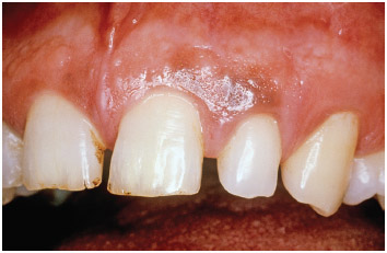 View of the mouth showing the effects of lead poisoning on the gums.