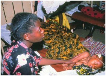 A mother watches over her small child who is comatose with severe malaria in the children's ward of a Tanzanian hospital.