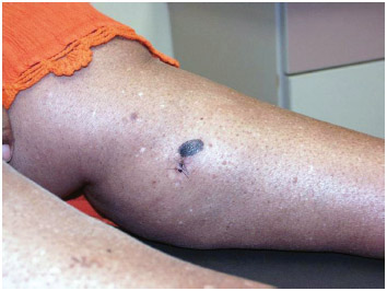 This image depicts the gross appearance of a cutaneous pigmented lesion located on a patient's left medial calf,